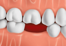 tooth-replacement-options